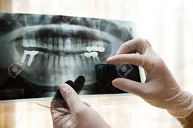 Excel Family Dental - Dental X-Rays